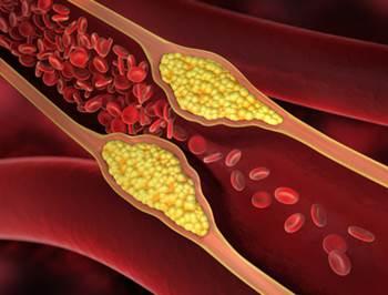 okivenblattextrakt arteriosklerose, olivenblättertee gefäßverengung, olivenblätter schlaganfall