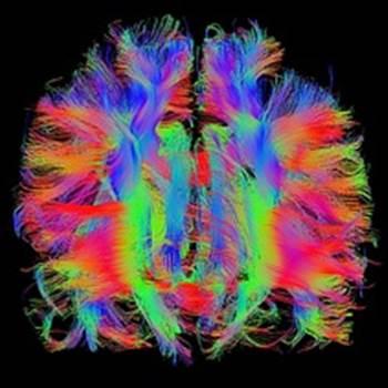olivenbaumextrakt alzheimer, olivenbaumextrakt dmenz, olivenbaumextrakt neuropathie